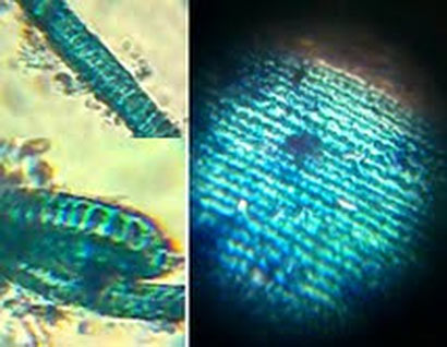 BOTH LIVE AND ANCIENT FOSSILISED DIATOMS FOUND IN TWO METEORITES THAT CRASH LANDED IN SRI LANKA SAYS CHANDRA WICKRAMASINGHE - Figure 2