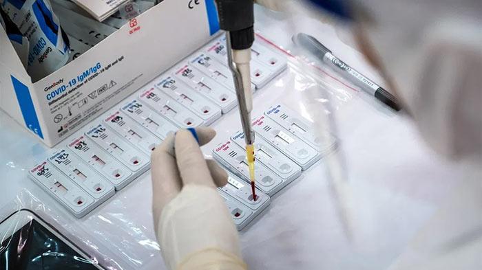 Rapid Antigen Test for COVID-19